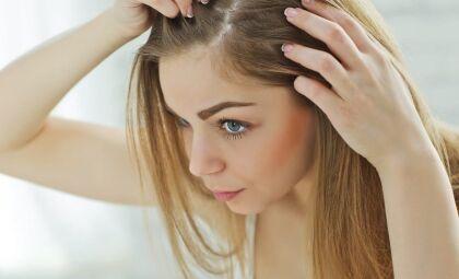 Controle a caspa! Veja como tratar a dermatite seborreica