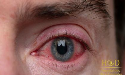 Hospital dos Olhos Dourados esclarece as diferenças entre Blefarite e Conjuntivite