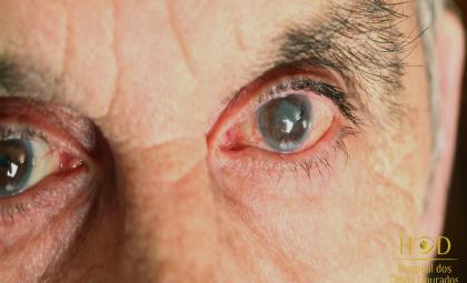 O Hospital dos Olhos Dourados explica o que você precisa saber sobre o glaucoma