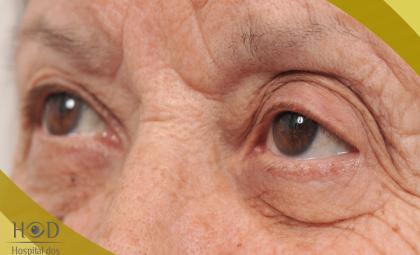 O Hospital dos Olhos Dourados orienta como manter o controle da retinopatia diabética
